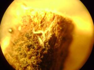 Нематоды-на-корневище-земляники-под-увеличением